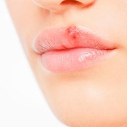 херпес на устните, herpes labialis
