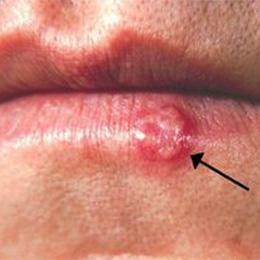 herpes labialis, херпес устните